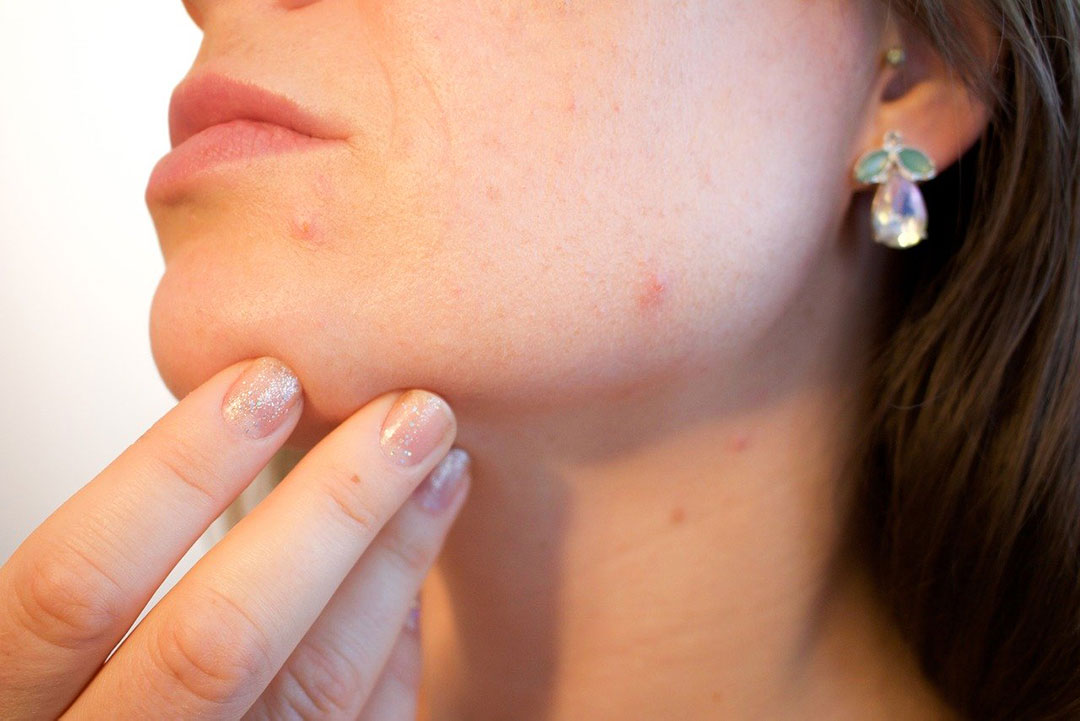 How to get rid of clogged pore