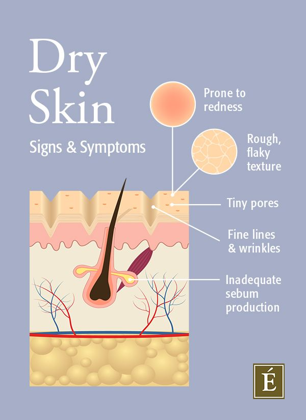 dry skin sign and symptoms infographic